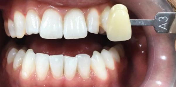zuby po beleni air flow